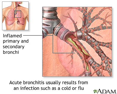 can Echinacea be a Bronchitis Cure? 307037286