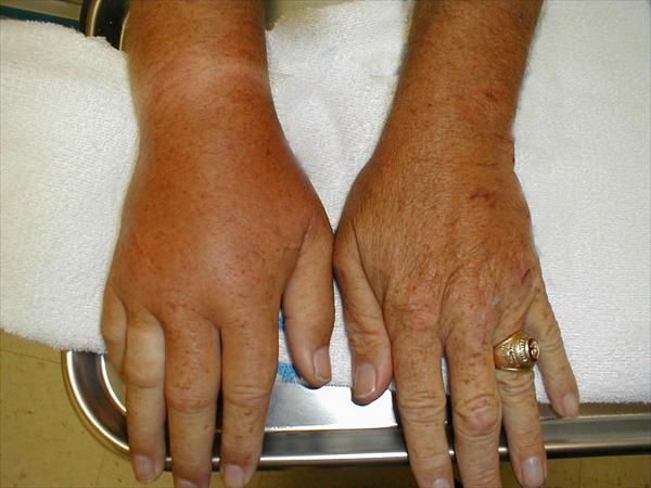 the Real Secret Behind Gout Treatment. 371310593
