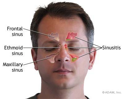 Sinusitis and Beneficial Devices to Prevent Sinus 433934572