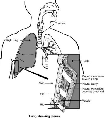 Acute Bronchitis Diet and Causes of Fluid in the Lungs 561802040