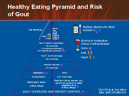 Causes for Gout and What Happens When Uric Acid Increases? 588926645