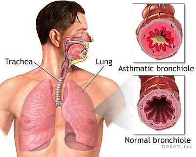Bronchial Pneumonia Asthma and Find Out What the Herb 65290967