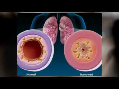 Holistic Approaches to Coughing 815761415