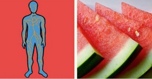 Hemorrhoid: Four Simple Hemorrhoid Treatment and Pain A-Watermelon-Role-You-Didnt-Know-Heres-What-A-Piece-Of-Watermelon-A-Day-Can-Do6