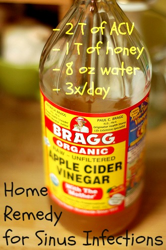 Sinusitis and Some Effective Home Remedies for Sinus ACV-for-Sinus-Infectins-Flickr-Marisa-Food-in-Jars9