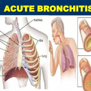 Bronchitis Often Acute-Bronchitis-In-Adults-And-Children-Causes-Symptoms-Diagnosis-Treatment-Prevention-Home-Remedies-x