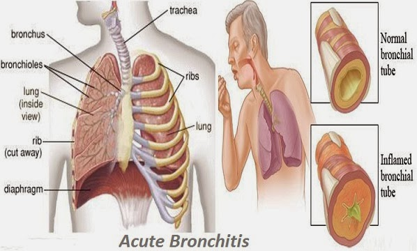 Bronchitis Mediions Treatment and When to See a Doctor  Acute-Bronchitis90