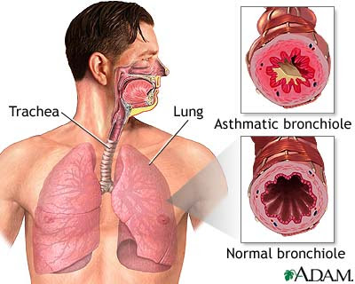the Bronchial Respiratory Disease Asthma-Attack