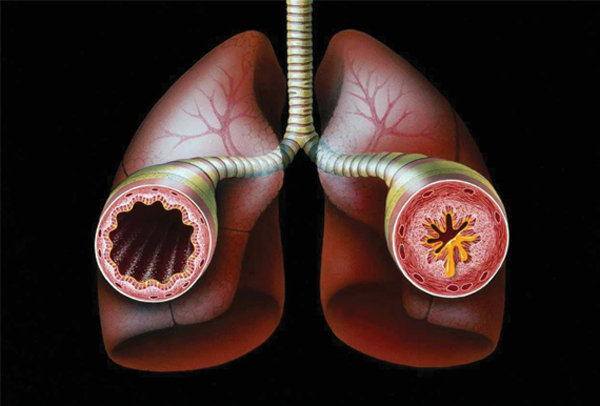 [Image: Asthma-Bronchial.jpeg]