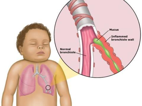 Bronchitis High Blood Pressure: Bronchitis and Pneumonia: Bronchiolitis-anatomy