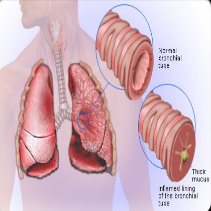 How to Recognize Bronchitis Symptoms Bronchitis-Cough95