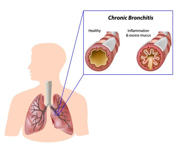 Www Bronchitis. All about Acute Bronchitis (Part One) Bronchitis-Image724
