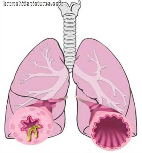 Chronic Bronchitis Allergy: Chronic Bronchitis Prevention: Bronchitis-Pictures3