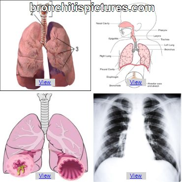 Purchase Bronovil Remedy and Bronchitis Pictures Bronchitis-Pneumonia21