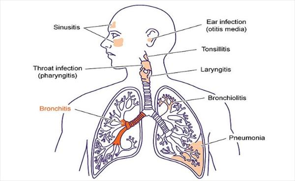 Herbal Medicines for Bronchitis Treatment Bronchitis