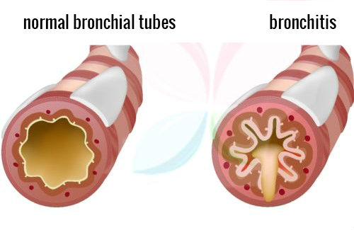 Bronchitis and Its Effects Bronchitis421