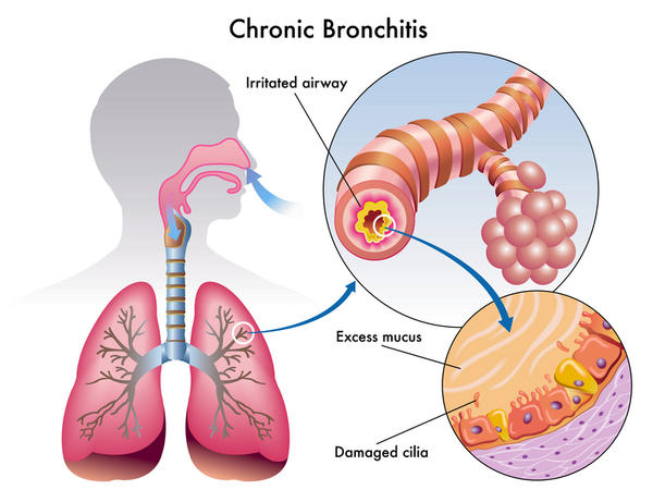 Fever and Sore Throat Bronchitis524