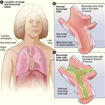 Acute Bronchitis: Diseases that Affect the Respiratory Bronchitis5340