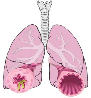 [Image: Bronchitis8197.jpeg]