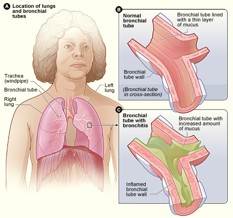 Why Does Head Hurt When You Cough? Bronchitis858
