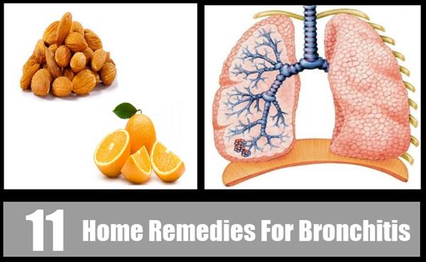 Bronchitis Treatment and Cure Bronchitis Quickly and 8 Home Bronchitis9173