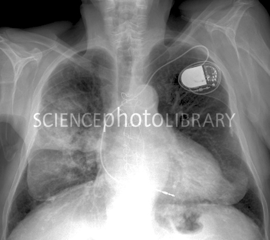 [Image: C-Heart-and-lung-disease-X-ray-SPL.jpeg]