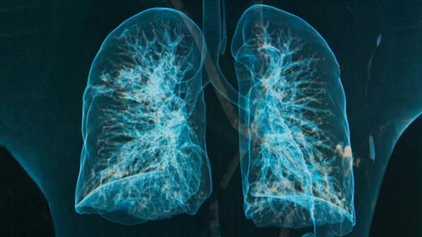Chronic Bronchitis Vs Emphysema and Bronchitis- Acute CONTIPS-lungs-chronic-bronchitis-emphysema-FS