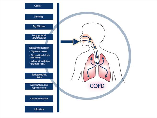 [Image: COPD-contributing-factors5.jpeg]
