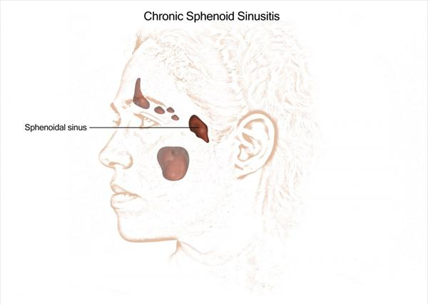 [Image: Chronic-Sphenoid-Sinusitis-v.jpeg]
