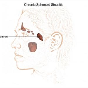 [Image: Chronic-Sphenoid-Sinusitis-v9.jpeg]