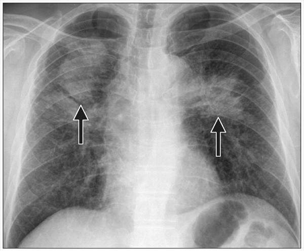 Bronchitis Chest and Children and Acute Bronchitis Coal-Workers-Pneumoniocosis-On-Chest-X-ray