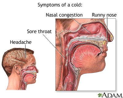 [Image: Common-cold-remedy.jpeg]
