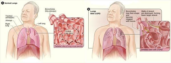 Bronchitis Cough Up and Detailed Information on Chronic Copd-Side