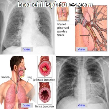 Pathophysiology of Asthmatic Bronchitis and Symptoms  Cure-For-Bronchitis3