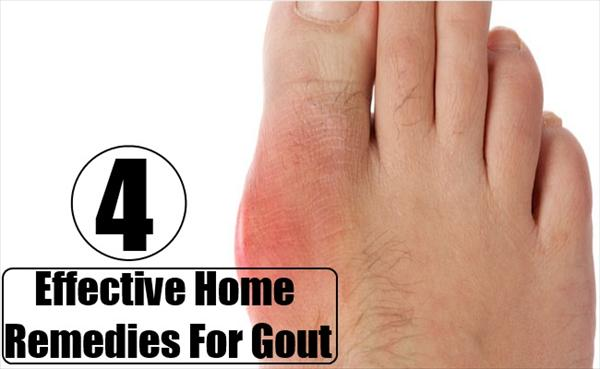 Definition Gout and Gout Disease and Natural Remedies  Effective-Home-Remedies-For-Gout82
