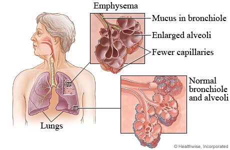 General Information on Acute Bronchitis Emphysema89