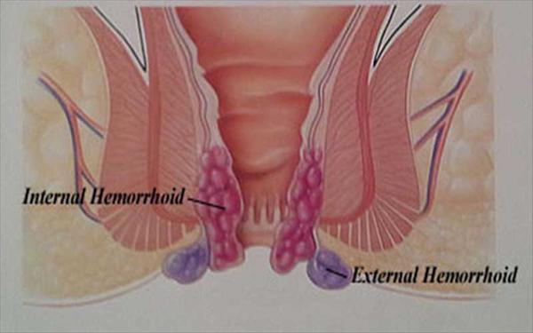How to Find and Use a Hemorrhoid Treatment for Bleeding External-Hemorrhoids-The-Facts7525