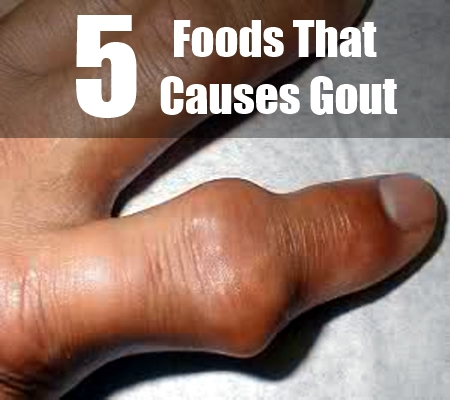 Gout Herbal Remedy, Causes of Gout Attacks Food-Causes-Gout0