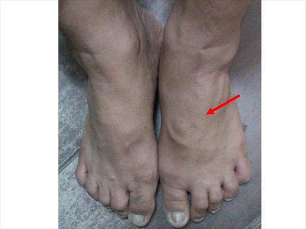 Arthritis Gout Joints and Delicious Low Purine Foods  Foot
