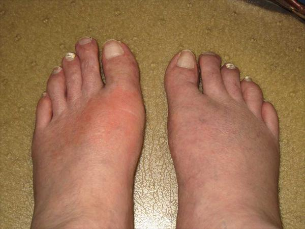 Acute Gout. How can Gout be Treated? Gout-Disease97