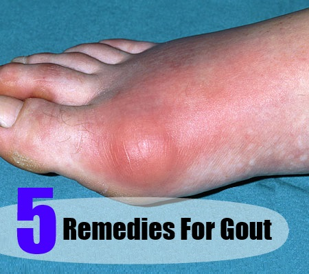 Pain in Joints and Gout Natural Remedy Gout-Remedies82