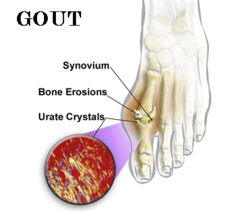 Cause Food Gout  Gout-home-remedies98