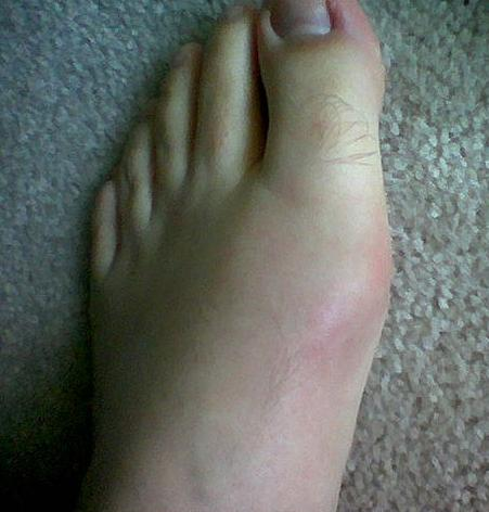 Exercise Gout Gout-in-Toe12