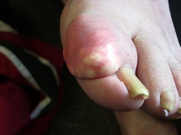 Fighting Gout With Diet Gout-tophi