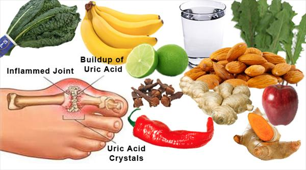 Food Good Gout and Foods to Avoid With Gout Gout-treatment368