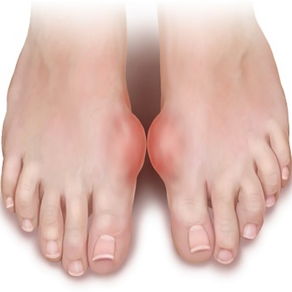 Gout: Its Symptoms and Levels Gout