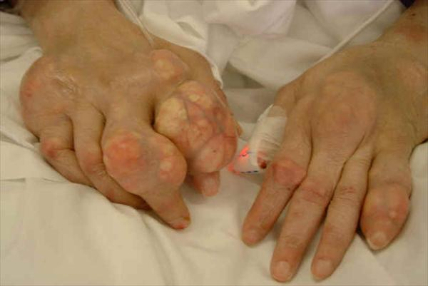 Joint Pain and Back Pain Gout09593