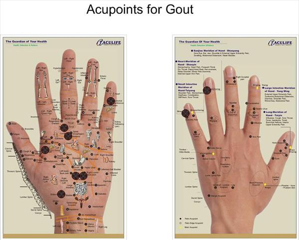 Medication for Gout and Manage Arthritis and Gout Pain With Gout177