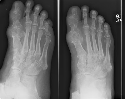 Treat Gout: Detailed Information on Gout Gout548
