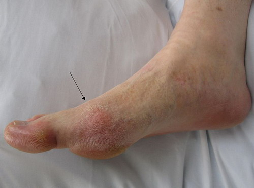 What is Gout? Gout624